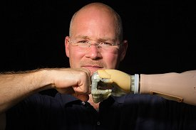 Portrait of a man with one normal and one bionic hand  (Picture: Touch Bionics)